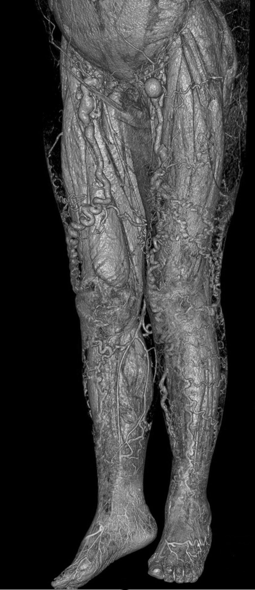 Großzügig Herzanatomie Wiki Galerie - Menschliche Anatomie Bilder ...