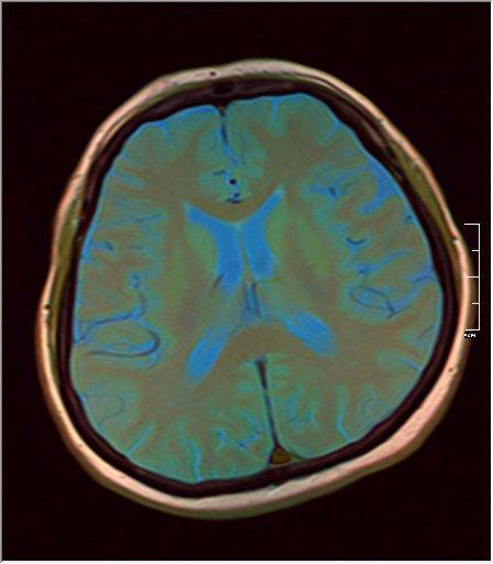 Brain MRI 0125 08.jpg