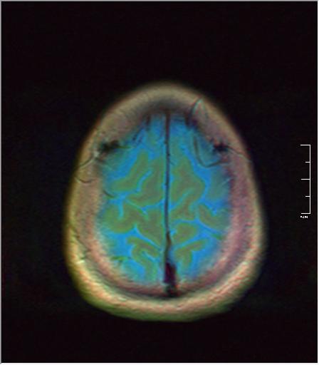Brain MRI 293 01.png