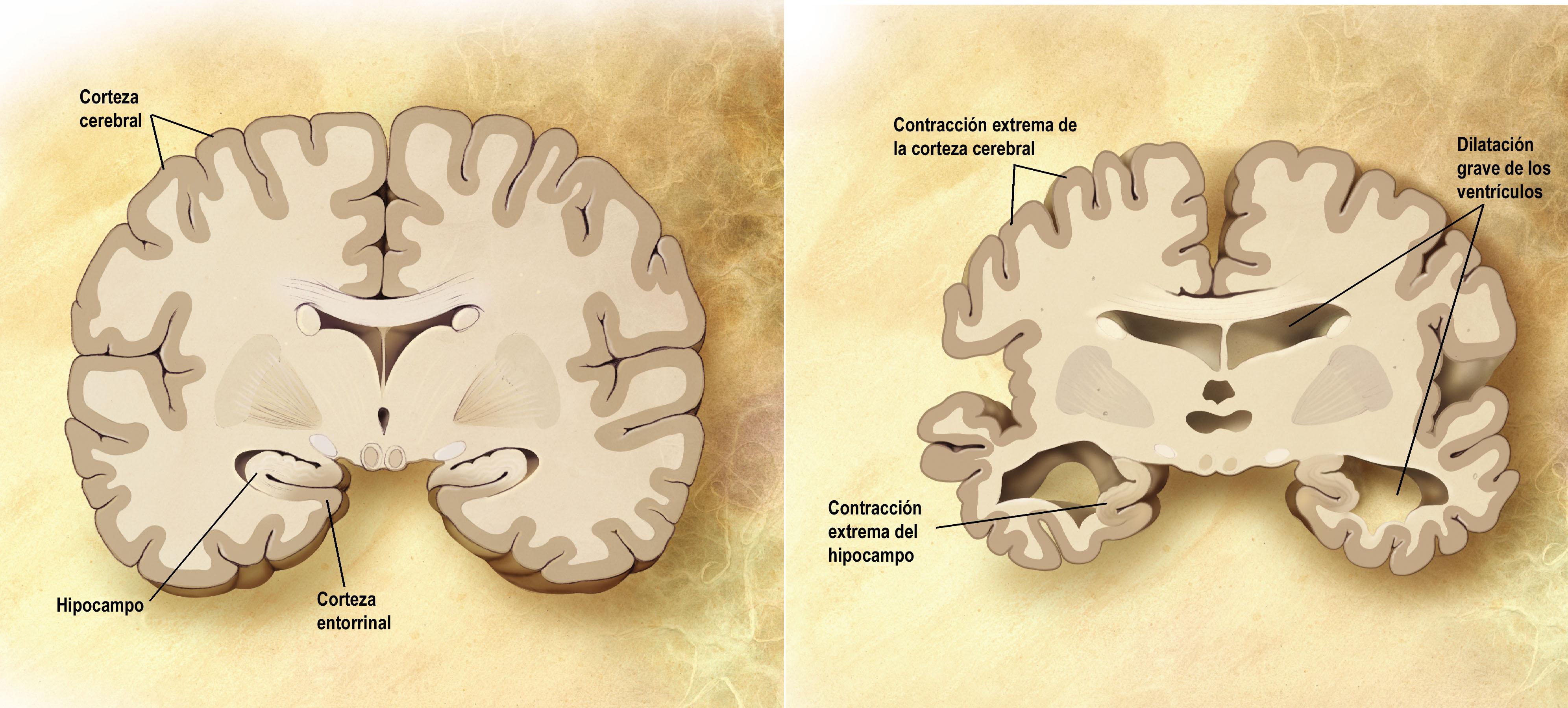 Alzheimer-rak entzefaloan dituen ondorio larriak. Iturria: Wikipedia