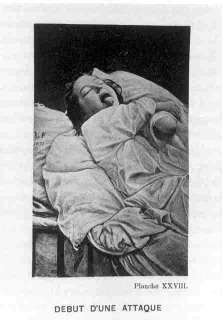 bourneville women Bourneville's tuberous sclerosis associated with double uterus and vagina (didelphic uterus.