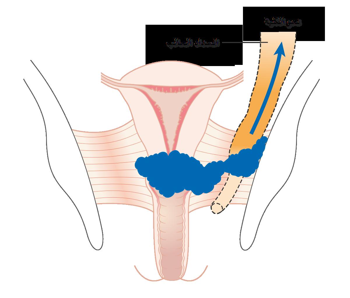 Filediagram showing stage 3b cervical cancer cruk 226 arg filediagram showing stage 3b cervical cancer cruk 226 arg ccuart Choice Image