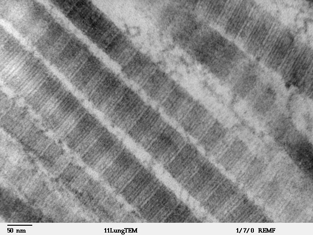Image result for collagen fibers