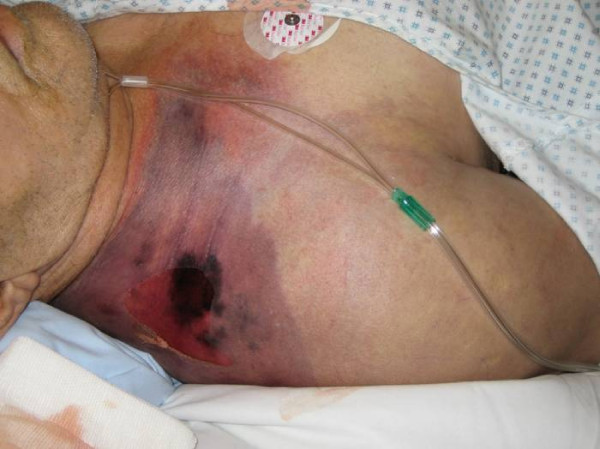File:Gas gangrene shoulder.jpg