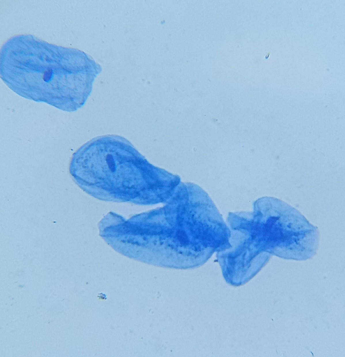 FileHuman Cheek Cells Methylene Blue Stain