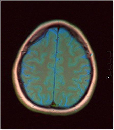 Brain MRI 0035 05 t1 pd t2 41f.jpg