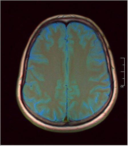 Brain MRI glioma 05.jpg