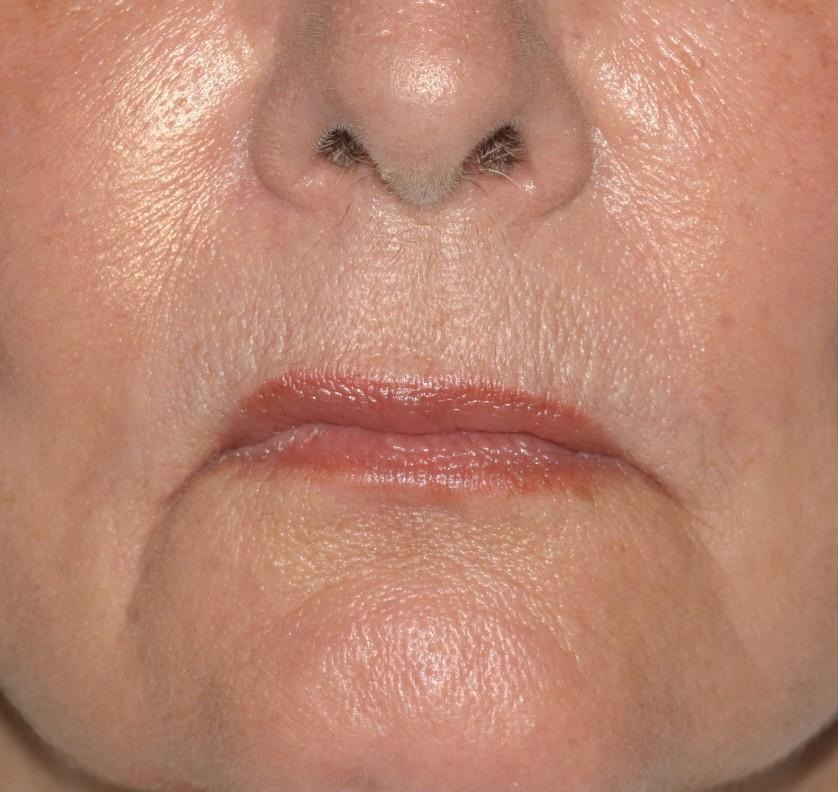 In contrast, herpes infections usually appear on the upper or lower lip margins, not in the corners 2