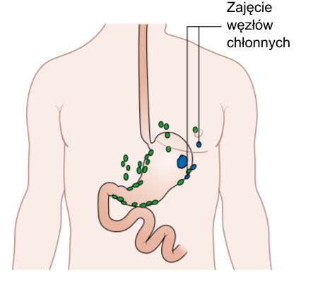 File:Diagram showing stomach cancer cells in the lymph nodes CRUK 274 pl.png