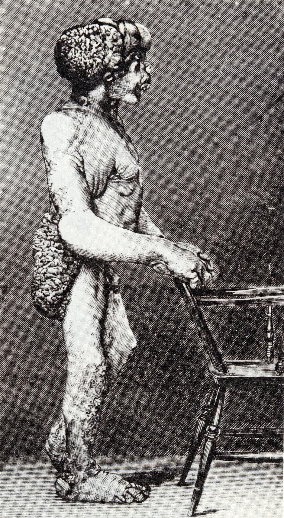 File:Joseph Merrick 1886 3.jpg