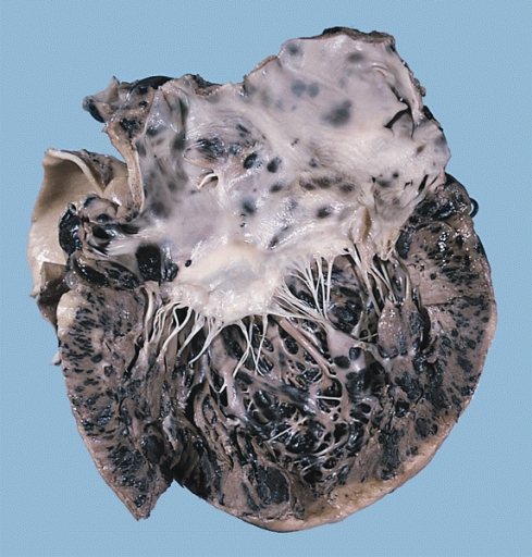 File:Metastatic malignant melanoma, heart.jpg