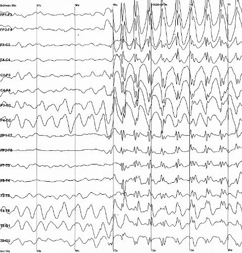 Depiction of Epilepsia