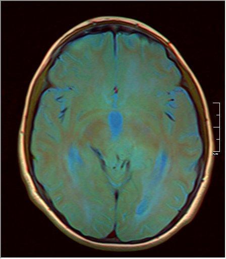 Brain MRI 0199 12.jpg