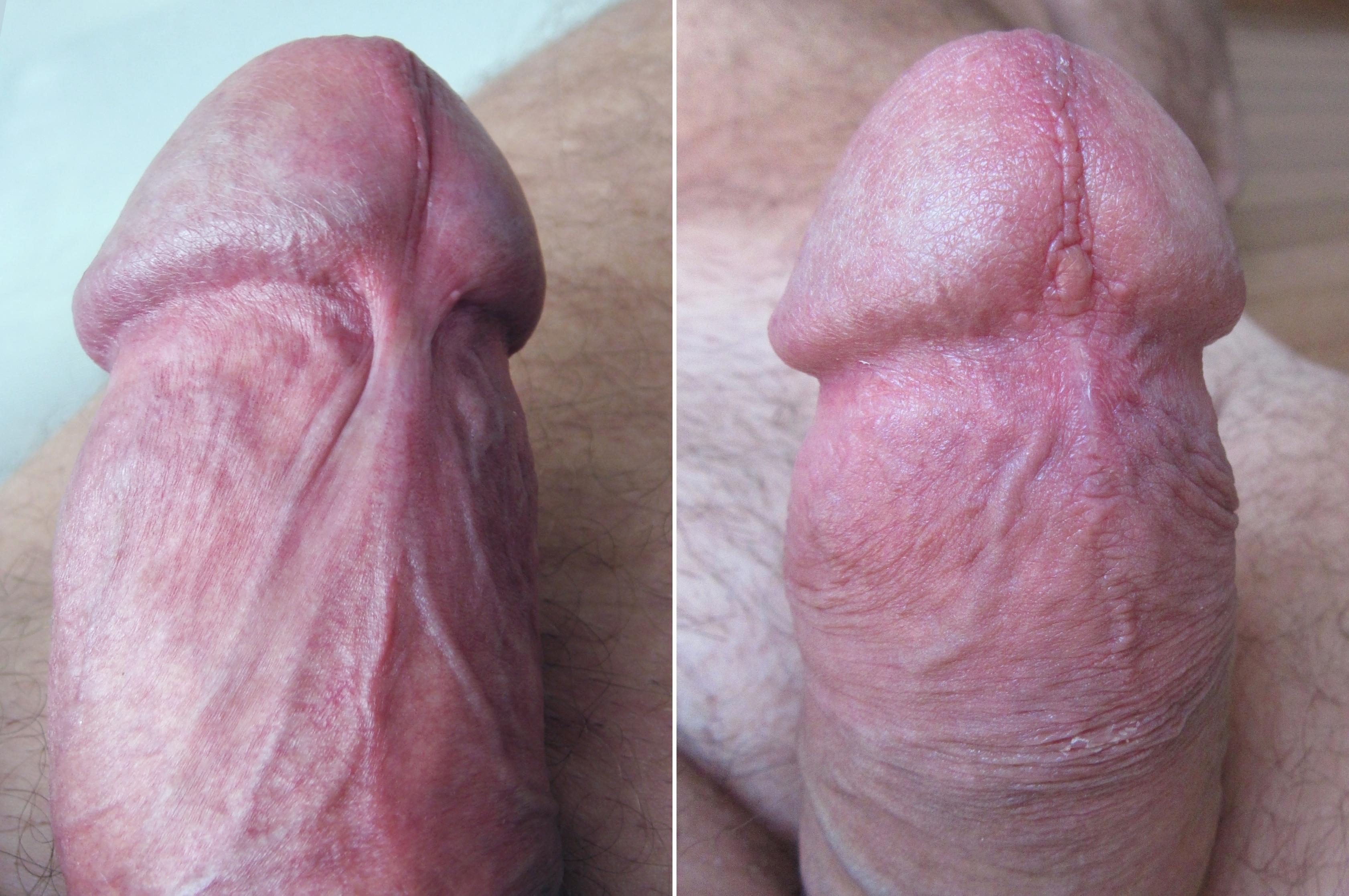Sex Toy Male Penis Enlargement Vacuum Pump For Penile Erection