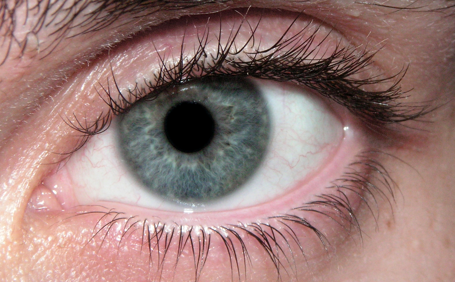 blue eye Embolization 'the process by which a blood vessel or organ is obstructed by a material mass' oleaginous 'marked by an offensively ingratiating manner or quality.