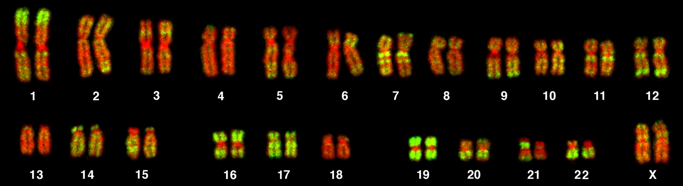 Fluorescent microscopy image of a human female karyotype, showing 23 pairs of chromosomes . The DNA is stained red, with regions rich in housekeeping genes further stained in green. The largest chromosomes are around 10 times the size of the smallest.[44]