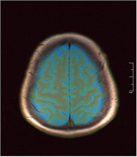 Brain MRI 0106 03.jpg