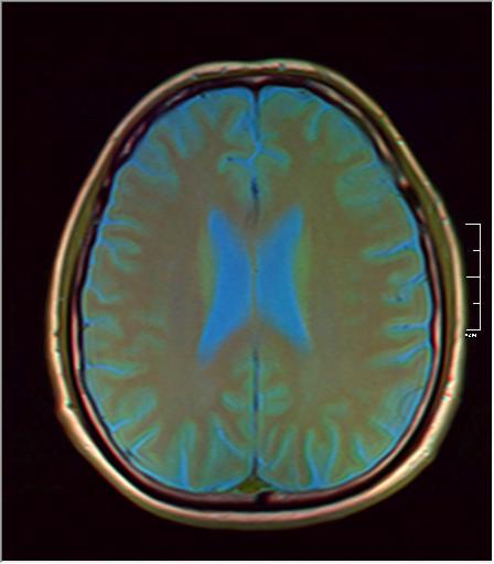 Brain MRI 293 07.png