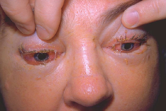 Datei:Clinical appearance of eyes in trichinosis by trichinella 3MG0027 lores.jpg