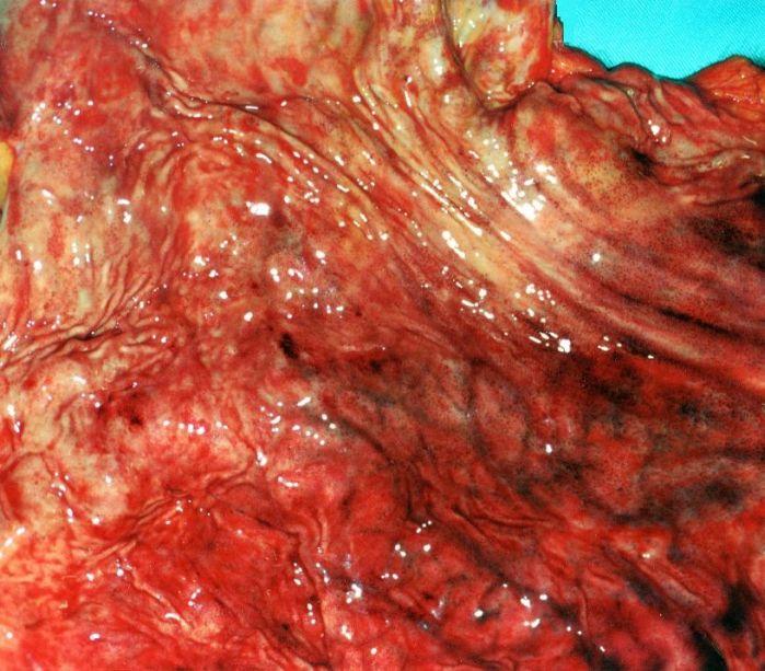 que es la gastritis aguda y cronica