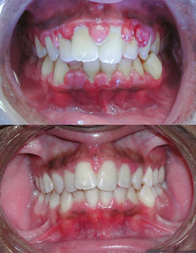 Gingivitis before and after-2