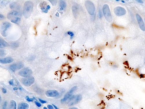 bacterii comensale