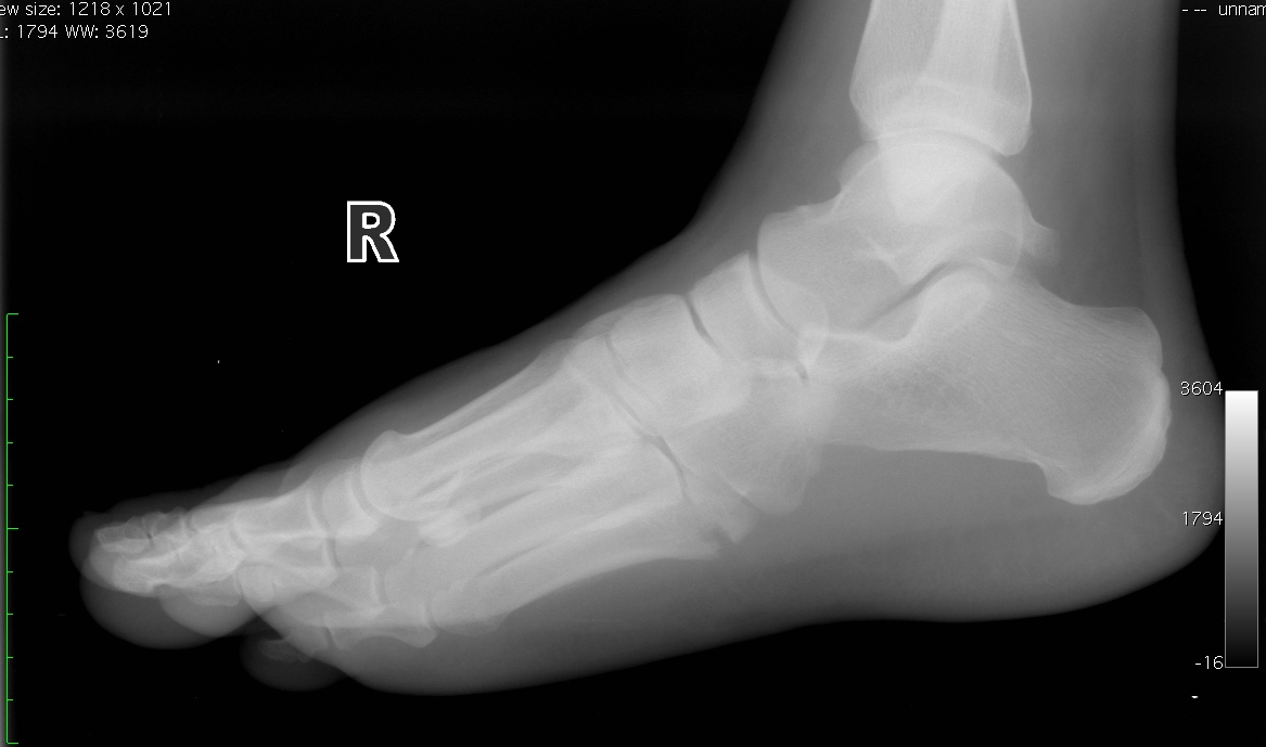After a foot fracture, surgeons may install orthopedic hardware.