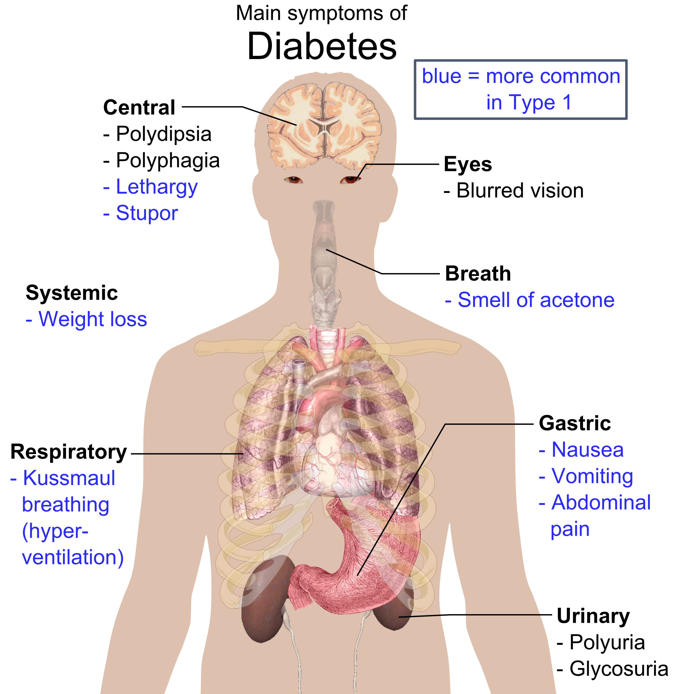 Overview of the most significant possible symptoms of diabetes.
