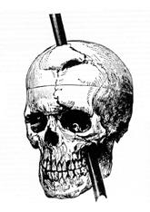 Phineas P. Gage survived an accident in which a large iron rod was driven completely through his head, destroying much of his brain's left frontal lobe, and is remembered for that injury's reported effects on his personality and behavior.[195]