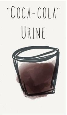 el acido urico da en los codos sintomas de acido urico alto en sangre