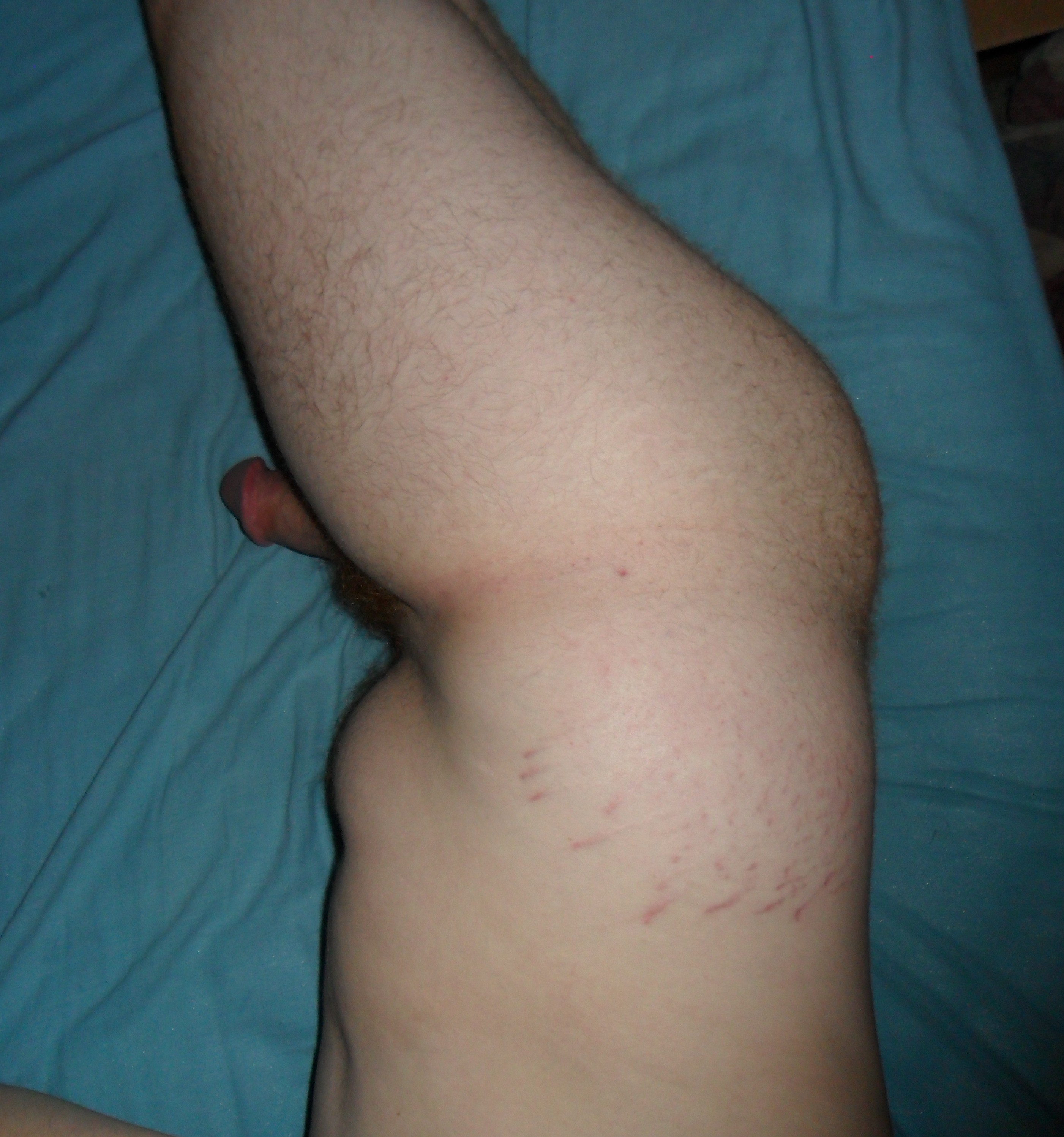 File:Stretch marks 1.jpg
