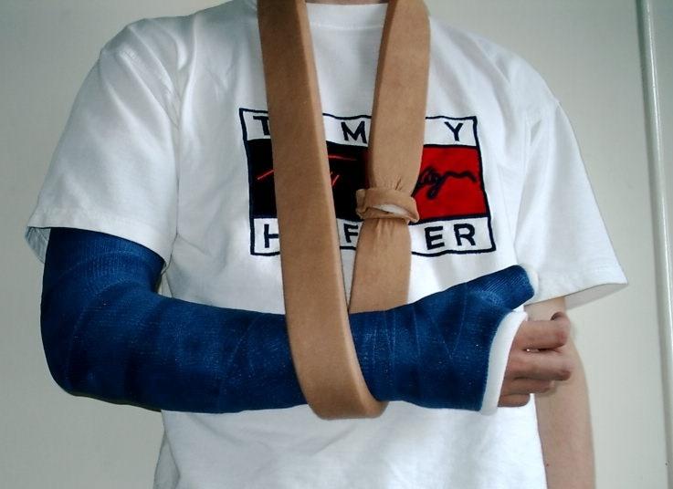 Juckt gips arm gebrochen Arm gebrochen,