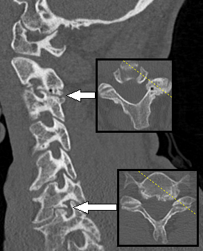 CT scan - Wikiwand