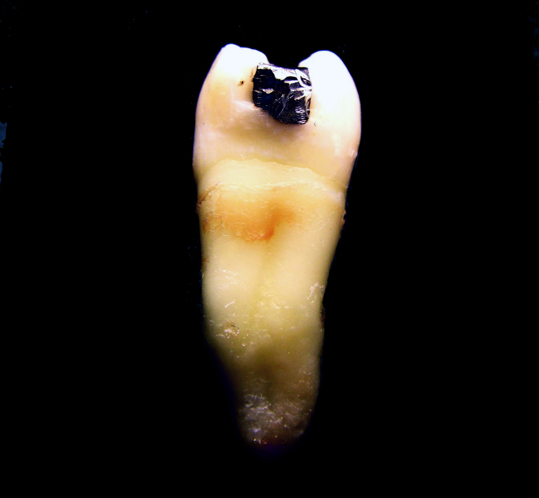 Dent Tooth Zub Wikipedia The Free Encyclopedia