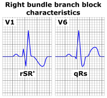 http://upload.wikimedia.org/wikipedia/commons/2/29/Right_bundle_branch_block_ECG_characteristics.png