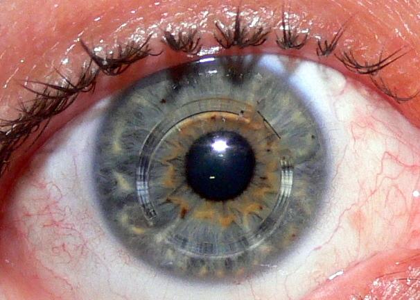 Black Eye Rings Wiki
