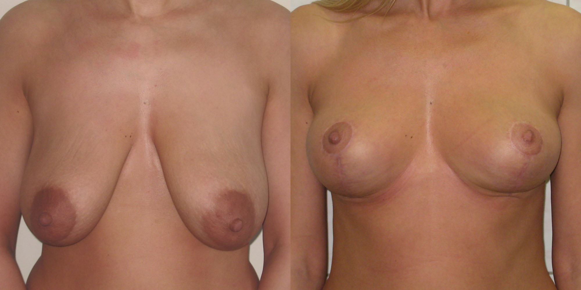 Mammoplasty surgery
