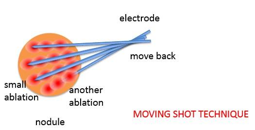 moving shot technique