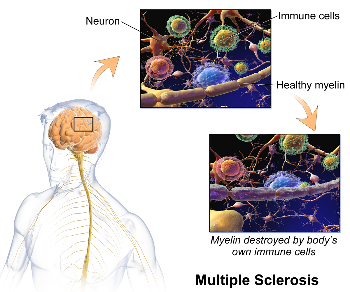the body's own immune cells destroy myelin in Multiple Sclerosis