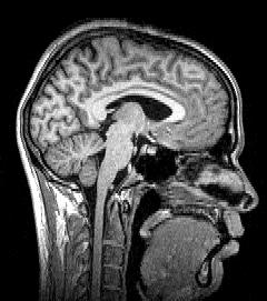 Sagittal MRI slice at the midline.