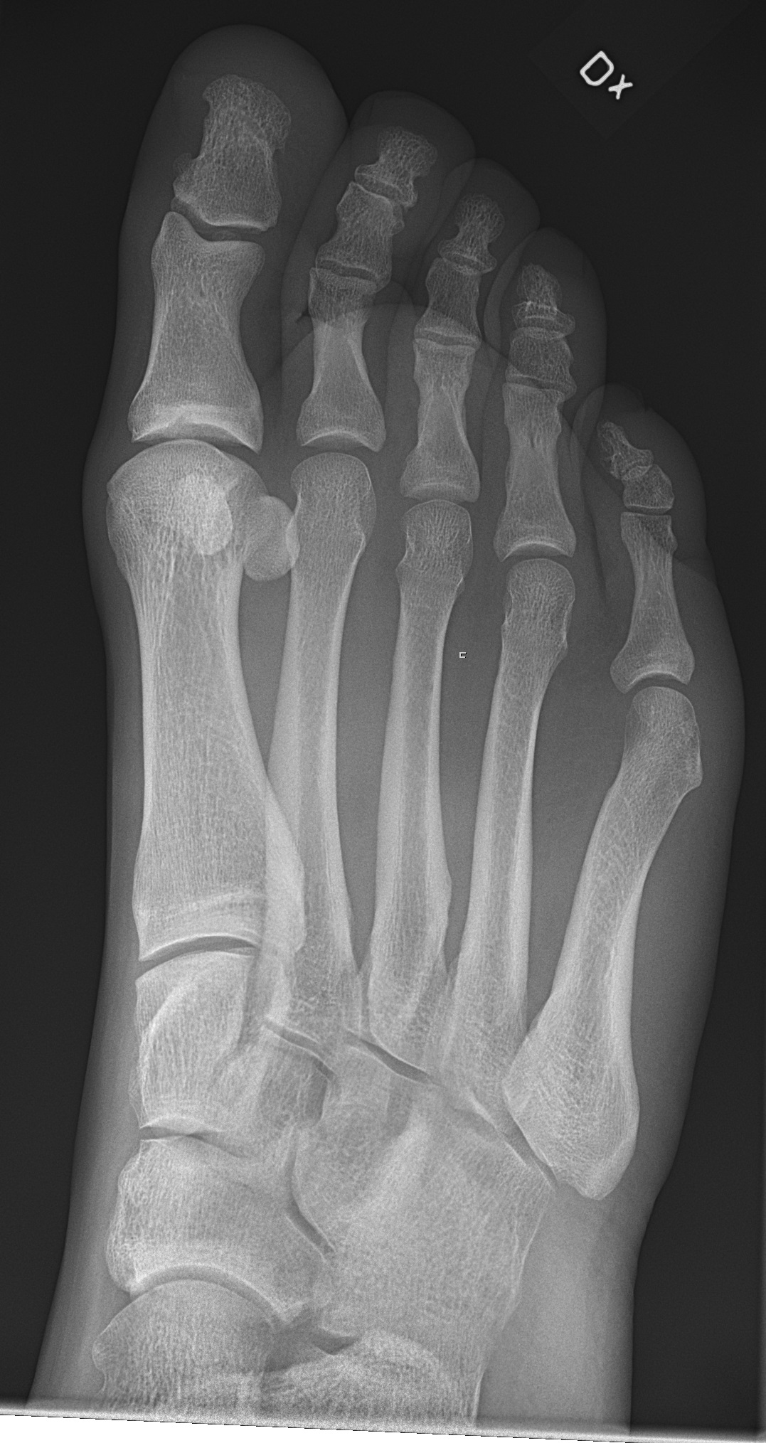 Filex Ray Of Normal Right Foot By Oblique Projectiong
