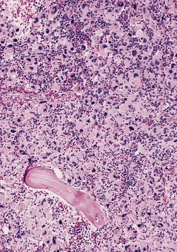 leukemia bone marrow and treatment Adult acute myeloid leukemia (aml) is a type of cancer in which the bone marrow makes abnormal myeloblasts (a type of white blood cell), red blood cells, or platelets enlarge anatomy of the bone the bone is made up of compact bone, spongy bone, and bone marrow compact bone makes up the outer .