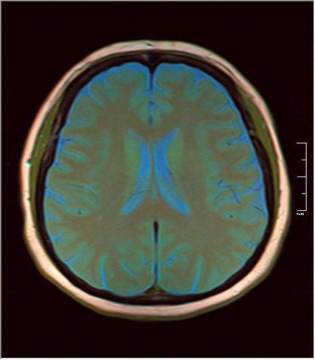 Brain MRI 0133 07.jpg