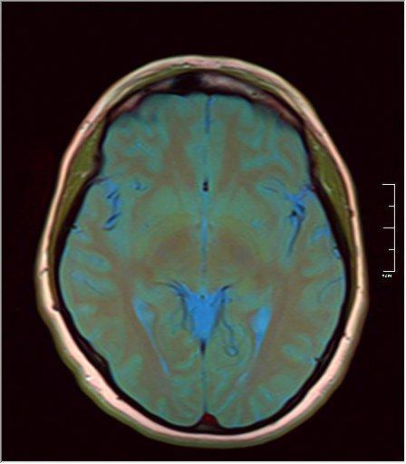 Brain MRI 11.jpg