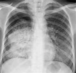 File:Dense opacity of primary pulmonary tuberculosis.jpg