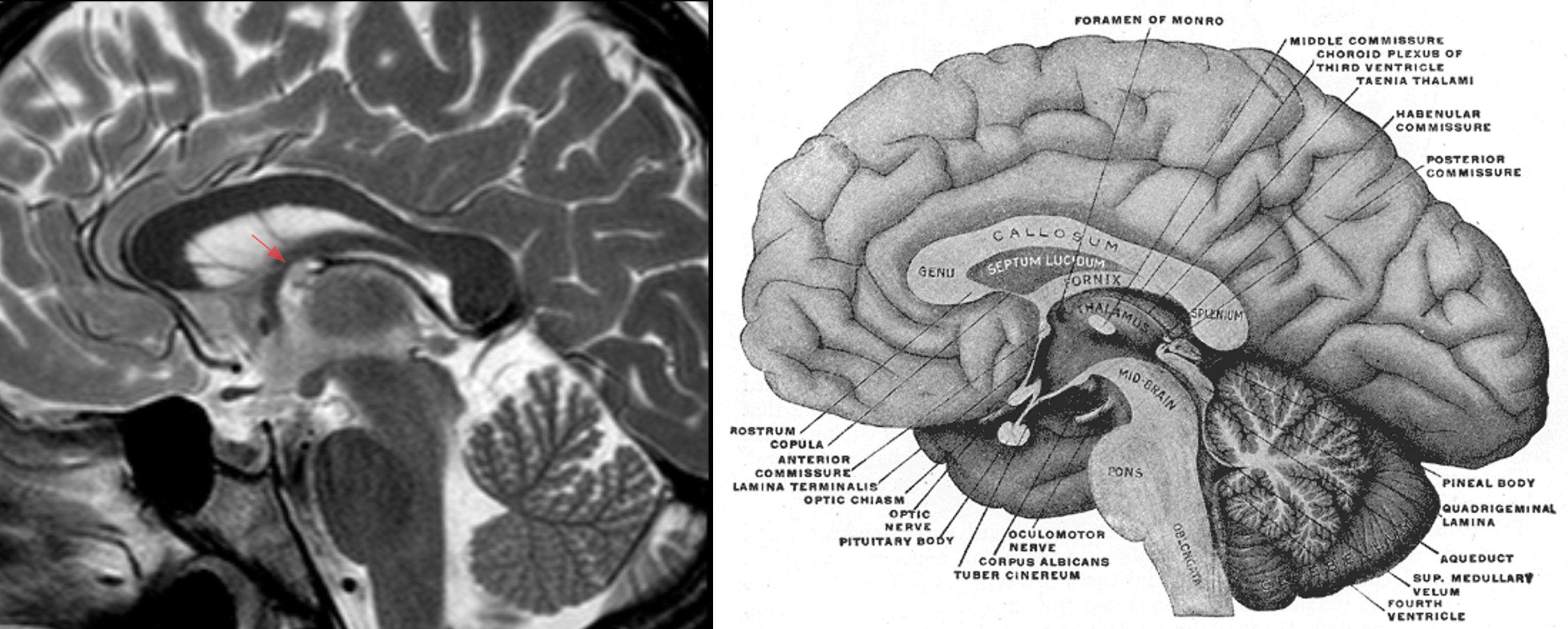 File:Kolloidzyste 25jw - MRT T2 sagittal und Anatomie - 001.jpg ...