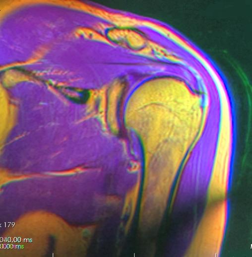 Shoulder MRI 115200 rgbca t1 t2 pdfs