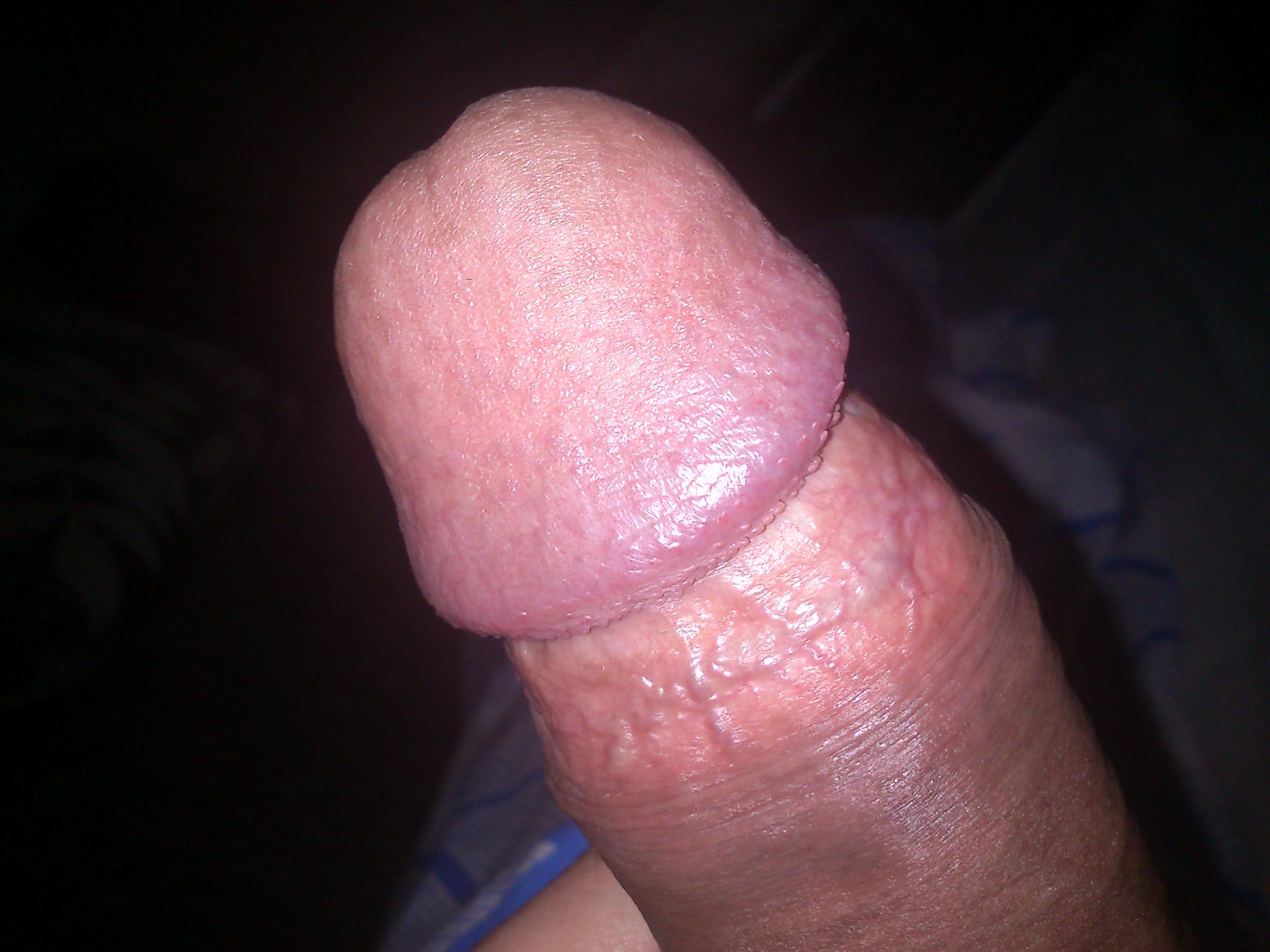 bolit-kozha-na-penise