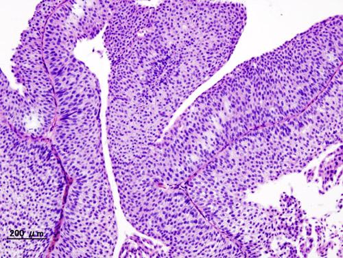 loading image for Bladder cancer