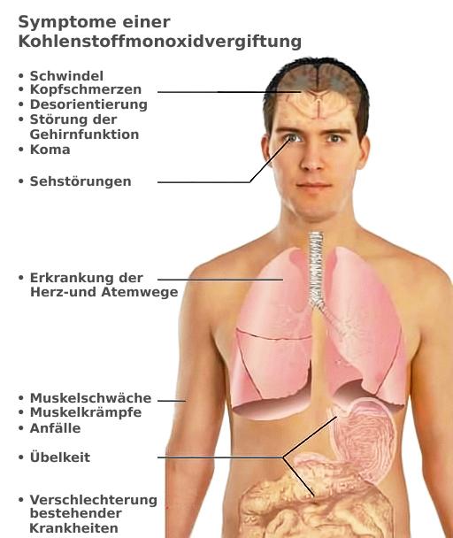 Symptome einer Kohlenmonoxidvergiftung